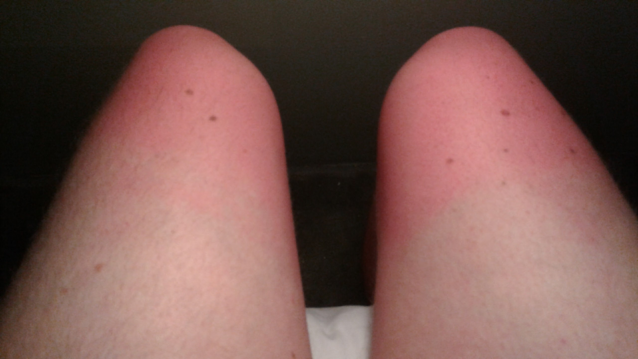 The main issue with riding in the back. And I'd put sunscreen on!