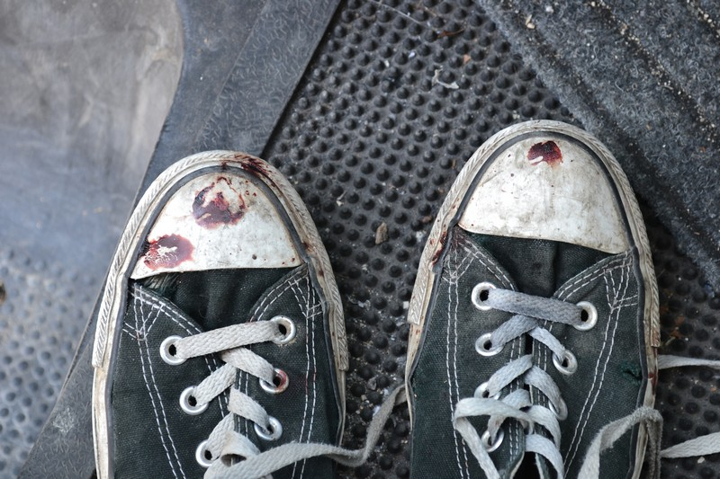 Blood on my Converse shoes